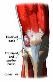 runner-knee