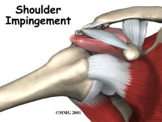 shoulder-impingement