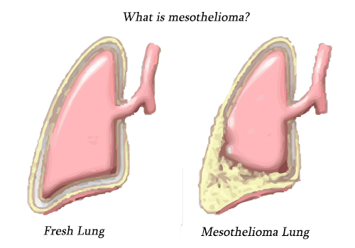 What-is-mesothelioma