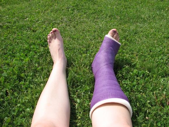 not-my-legs-just-yet.jpg