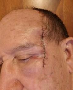 The 15+ stitches