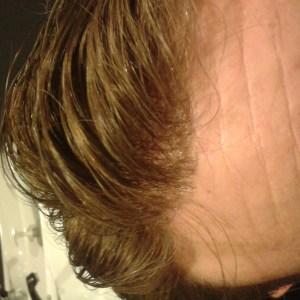 protesi-capelli