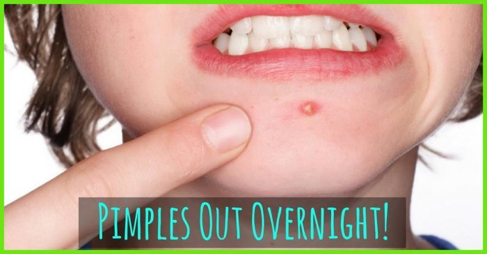 How-To-Get-Rid-Of-Pimples-Acne-Overnight-Fast-2