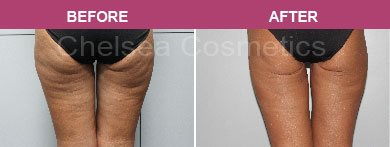 Abdominal liposuction before and after melbourne