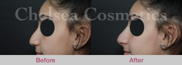 Nose Job Non-Surgical Rhinoplasty
