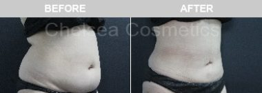 Abdomennon surgical liposuction melbourne before and after results