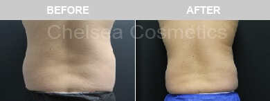 male flank liposuction before and after