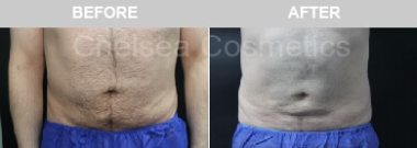 men's abdominal liposuction before and after
