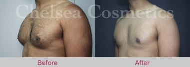 gynecomastia treatment melbourne