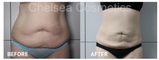 liposuction melbourne before and after