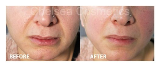 silhouette soft thread face lift before and after melbourne