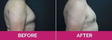 gynecomastia before after