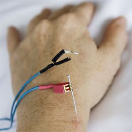 acupuncture_electro