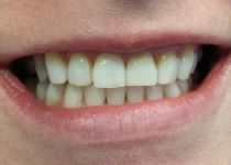 After ZOOM! Teeth Whitening