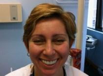 Snap-on-smile-after-3D-Dentistry