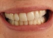 Before ZOOM! Teeth Whitening