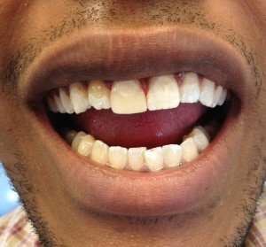 Emergency Dentist Toronto After Picture