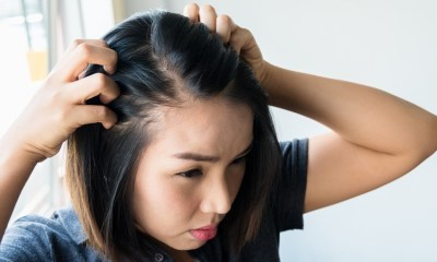 Hair Loss Women, Treatment