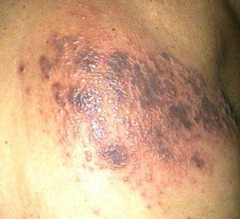 Zona Zoster Herpesul Ssl