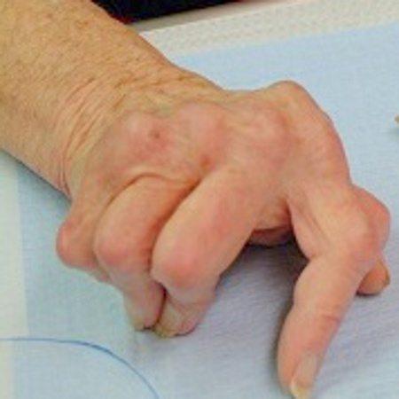 poliartrita cronica evolutiva tratament