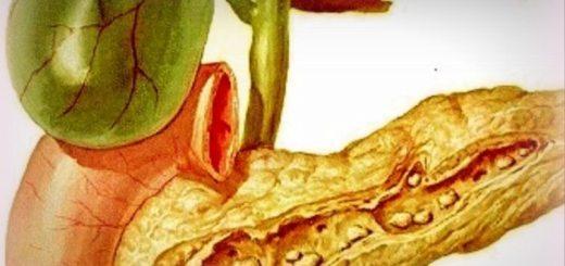 pancreatitele-acute