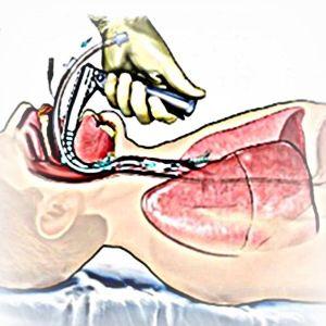 insuficienta-respiratorie-acuta-cronica