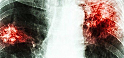 tuberculoza-pulmonara-tbc