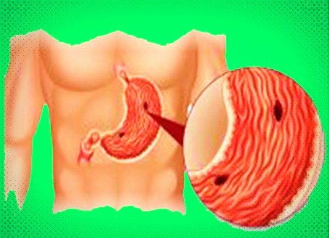 Ce este si cum se manifesta ulcerul