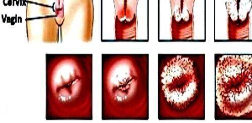 Cancerul-colului-uterin