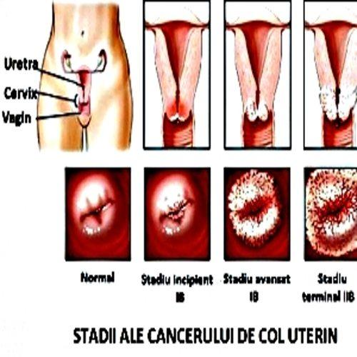 cancer genital feminin simptome