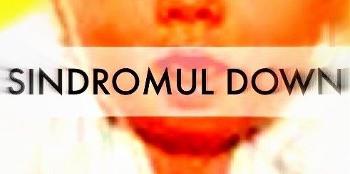 sindromul-down