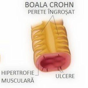 boala-crohn