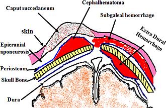 hematoma scalp