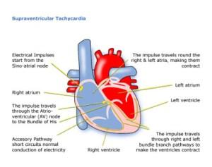 London Paediatric Cardiologist   Child Heart Specialist