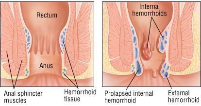 Hemorrhoids : Chinese Medicine Living