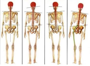 posture-golf-chiropracteur