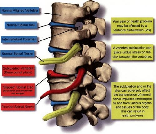 Whiplash Treatment After An Accident Or Injury