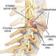 Cervical Radiculopathy (- petites histoires cliniques -)