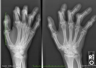 Osteoarthritis and zinc-Chiropractic News