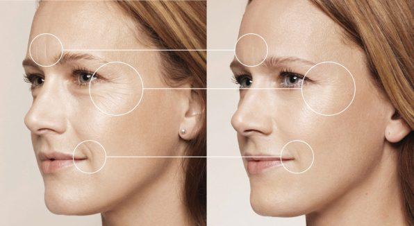 traitement avant et après