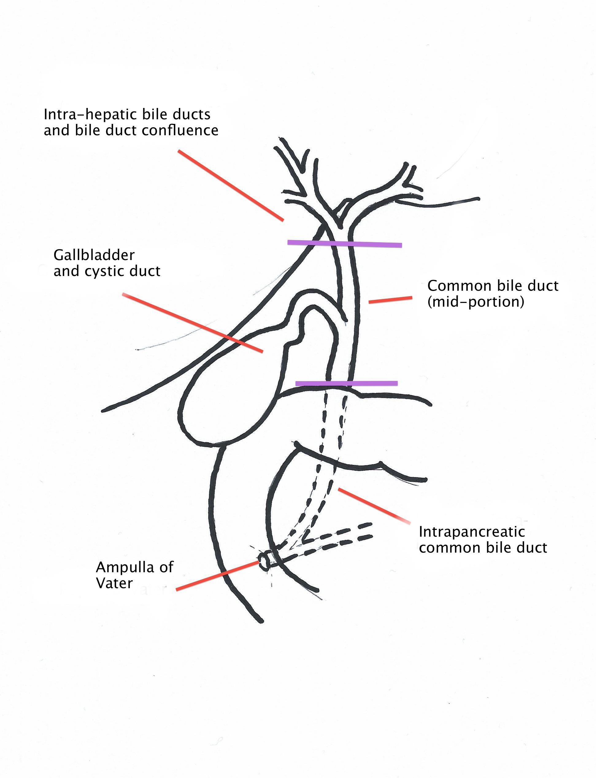 Chirurgia Del Pancreas Verona Bile Duct Adenocarcinoma