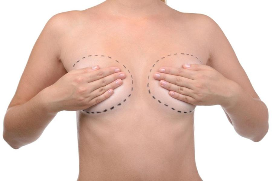 chirurgia estetica del seno
