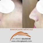 Rhinoplastie médicale par injection d'acide hyaluronique