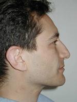 Rhinoplastie ou chirurgie esthétique du Nez à Nice