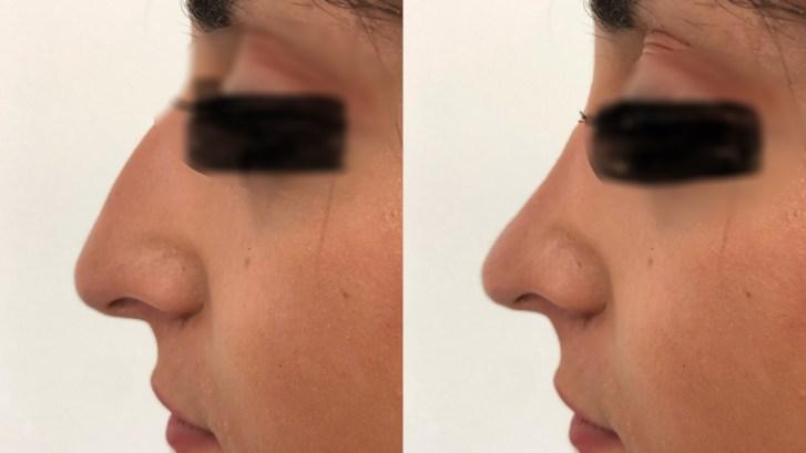 Rhinoplastie ou chirurgie esthétique du nez