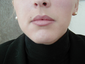 Les injections d'acide hyaluronique en photos