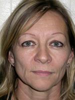 Interventions de lifting ou chirurgie esthétique du visage