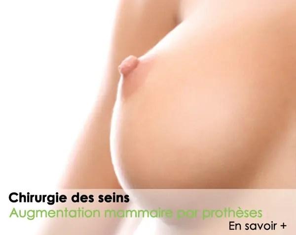 chirurgie du sein augmentation mammaire par prothèses
