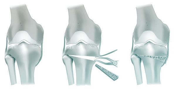 L'ostéotomie tibiale de valgisation d'ouverture interne