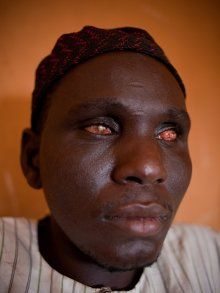 A sufferer of river blindness
